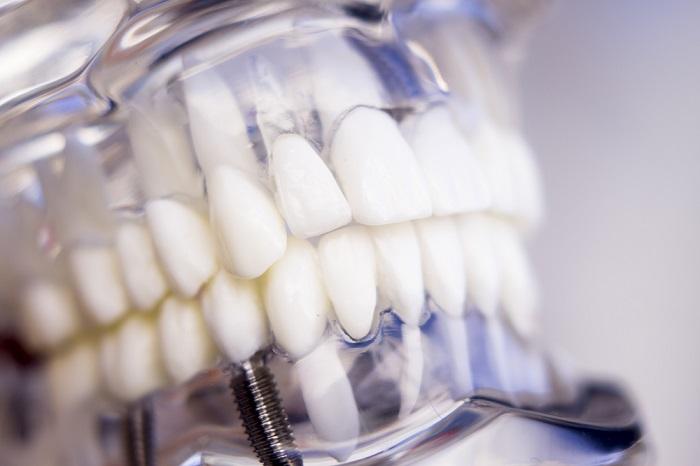 implantes dentales de calidad en Málaga